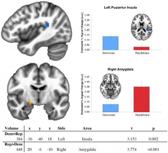 Figure from a study on partisan differences in brain function. When performing a risk-taking task, Republicans more strongly activate their right amygdala. Democrats have higher activity in their left posterior insula. CC BY Schreiber et al., PLOS ONE 8(2), February 2013.
