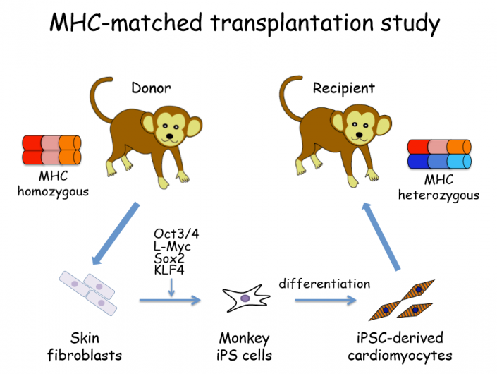 iPS cells were generated from MHC homozygous monkey and differentiated into cardiomyocytes. The cardiomyocytes were transplanted into another monkey in which either of the MHC haplotypes was identical to the donor. Credit: Yuji Shiba