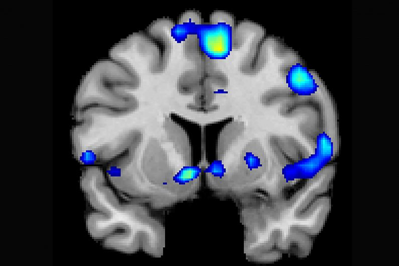 Several brain regions become active when devoutly religious study participants reported having a spiritual experience, including a reward circuit, the nucleus accumbens. Credit: Jeffrey Anderson