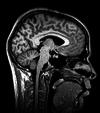 Neuroimaging