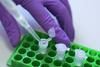 Formulation Development of Pharmaceuticals
