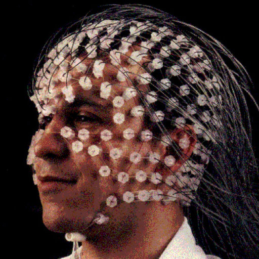 Where Can I Find Shareable Mrict Datasets Of The Human Head